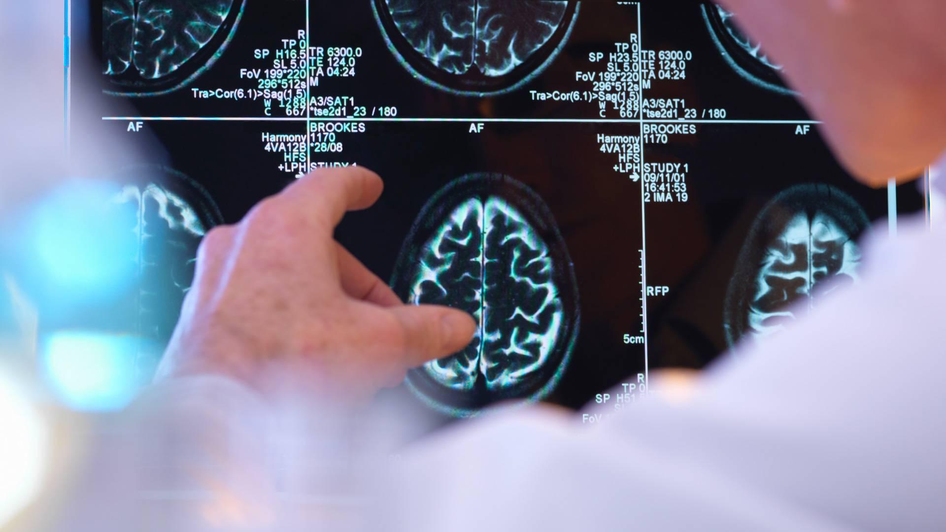 Лечение неврологии - германия | цены | отзывы - docland