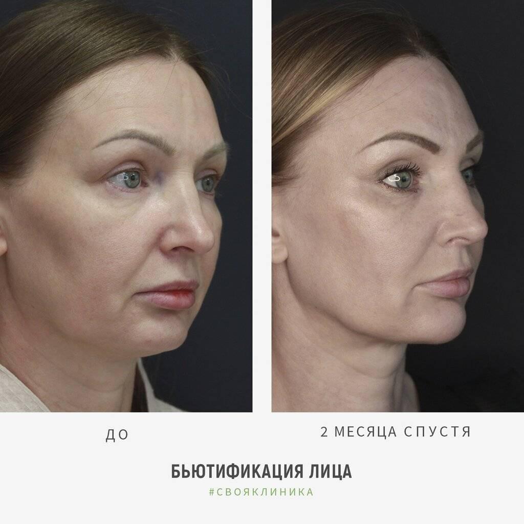 Липосакция в германии в ведущих косметологических клиниках