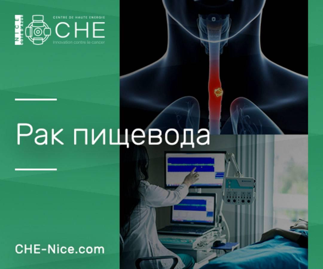 Лечение рака пищевода в германии: 27  клиник,  проверенные отзывы пациентов, честные цены - hospitals-travel.ru