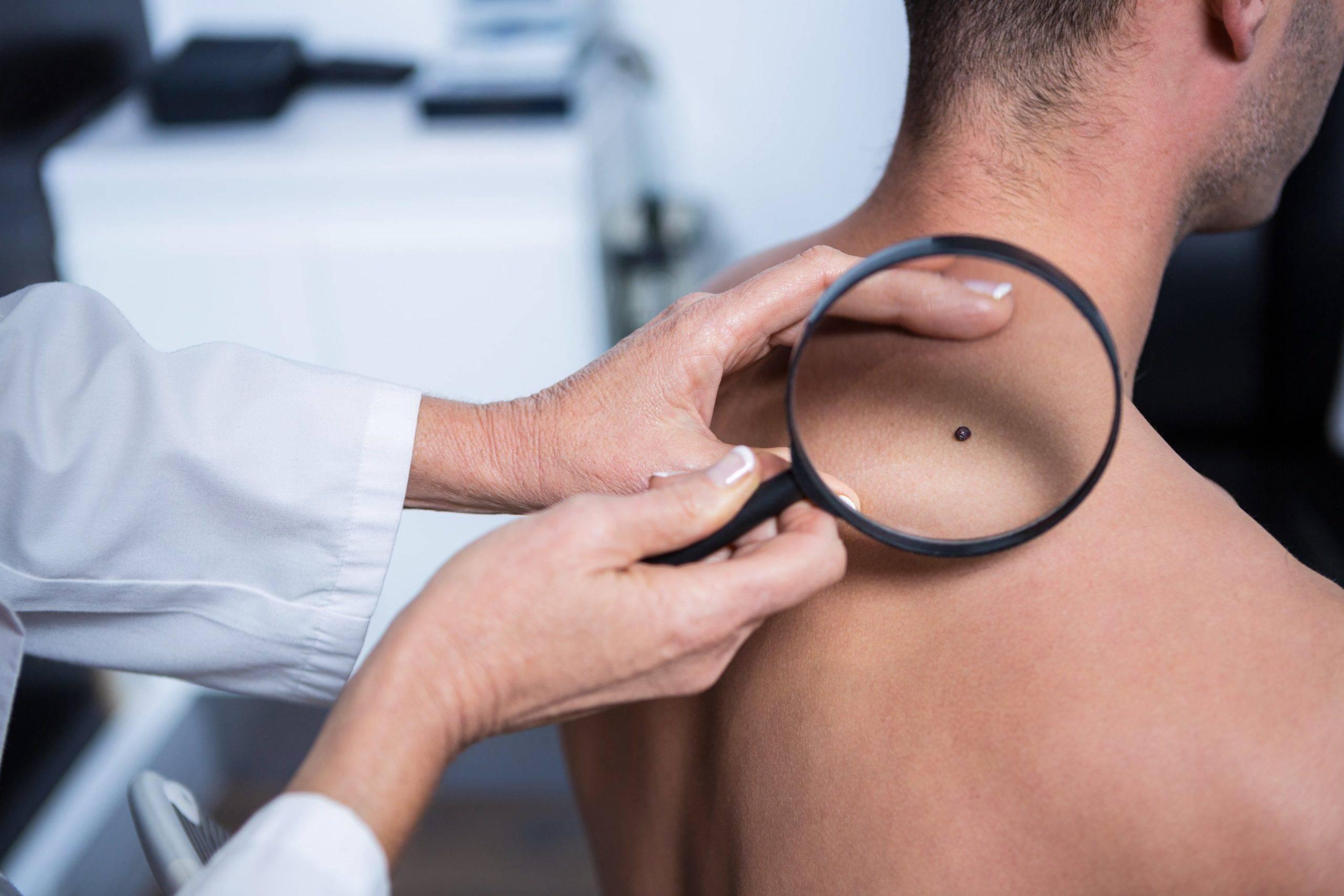 Лечение меланомы радужной оболочки в германии, цены клиник, отзывы - docland