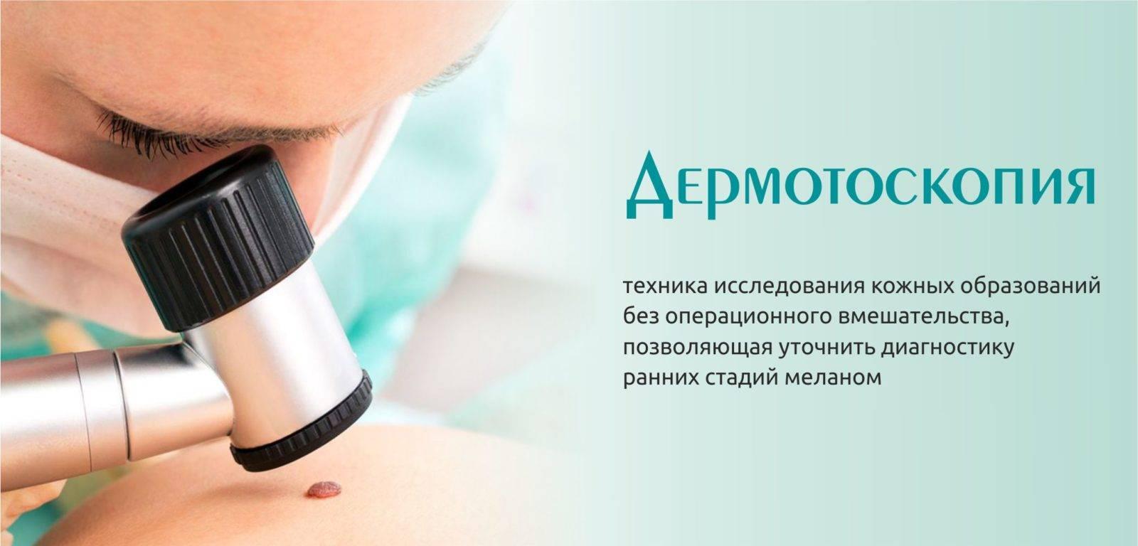 Меланома: израиль предлагает эффективное лечение рака кожи