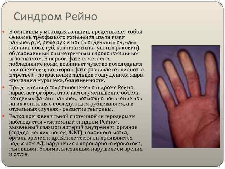 Синдром рейно: причины, признаки и проявления, диагностика, как лечить