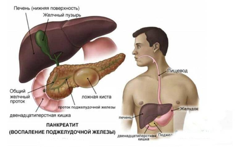 Рак поджелудочной железы - лечение в германии в лучших клиниках : yy medconsulting gmbh