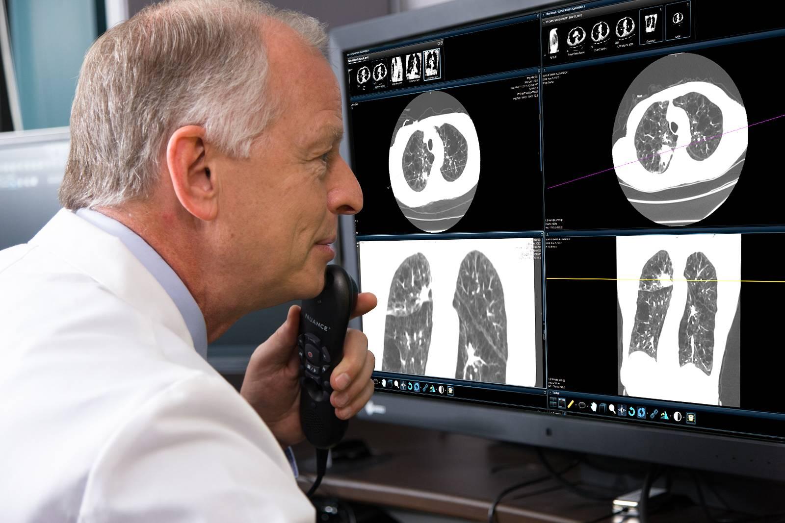 Лечение рака легких в германии, цены клиник, отзывы - docland