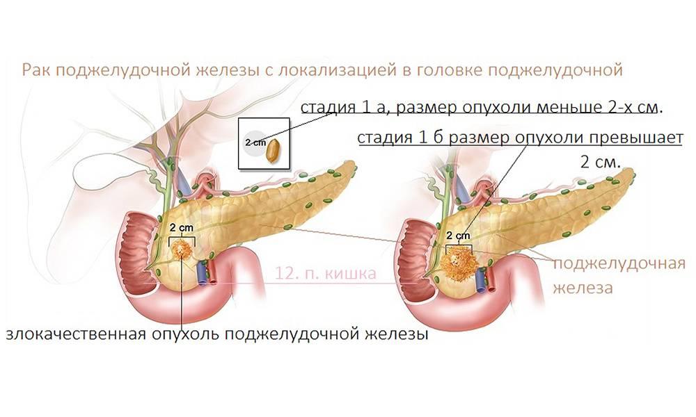 Операции на поджелудочную железу в германии