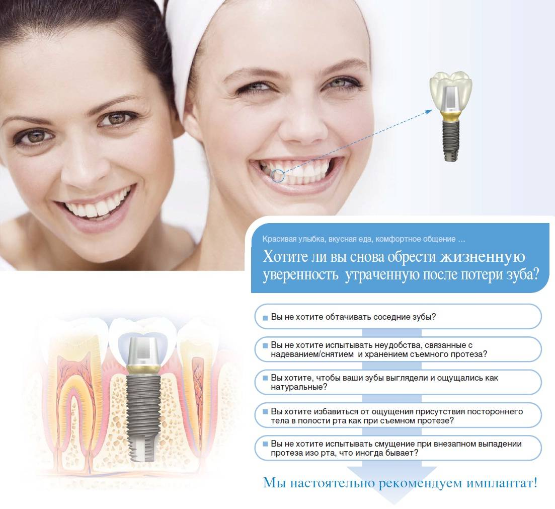 Зубы: в израиле цена лечения вариативна