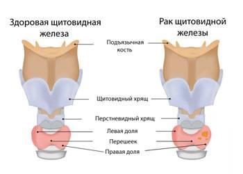 Лечение рака щитовидной железы в германии — виды и методы лечения рака щитовидной железы в клинике nordwest