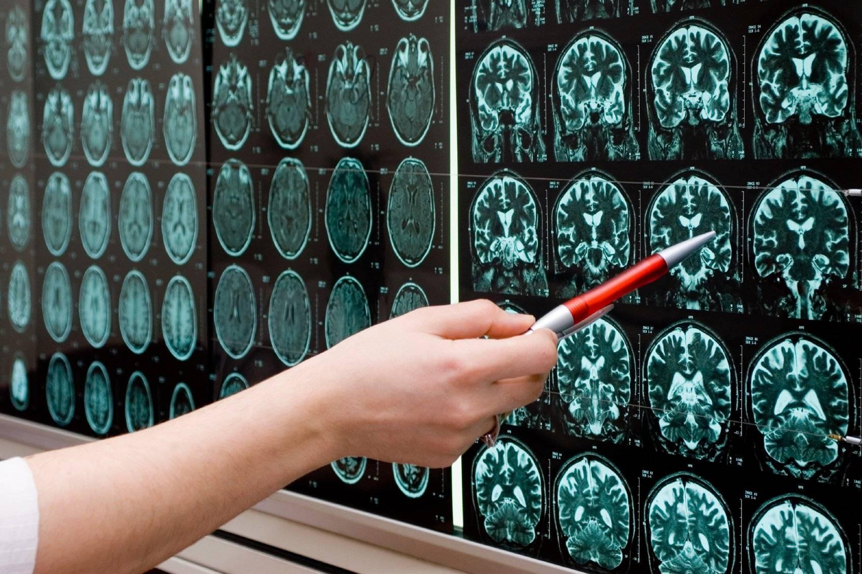 Неврология в германии – диагностика и лечение, цены | alenmedconsult