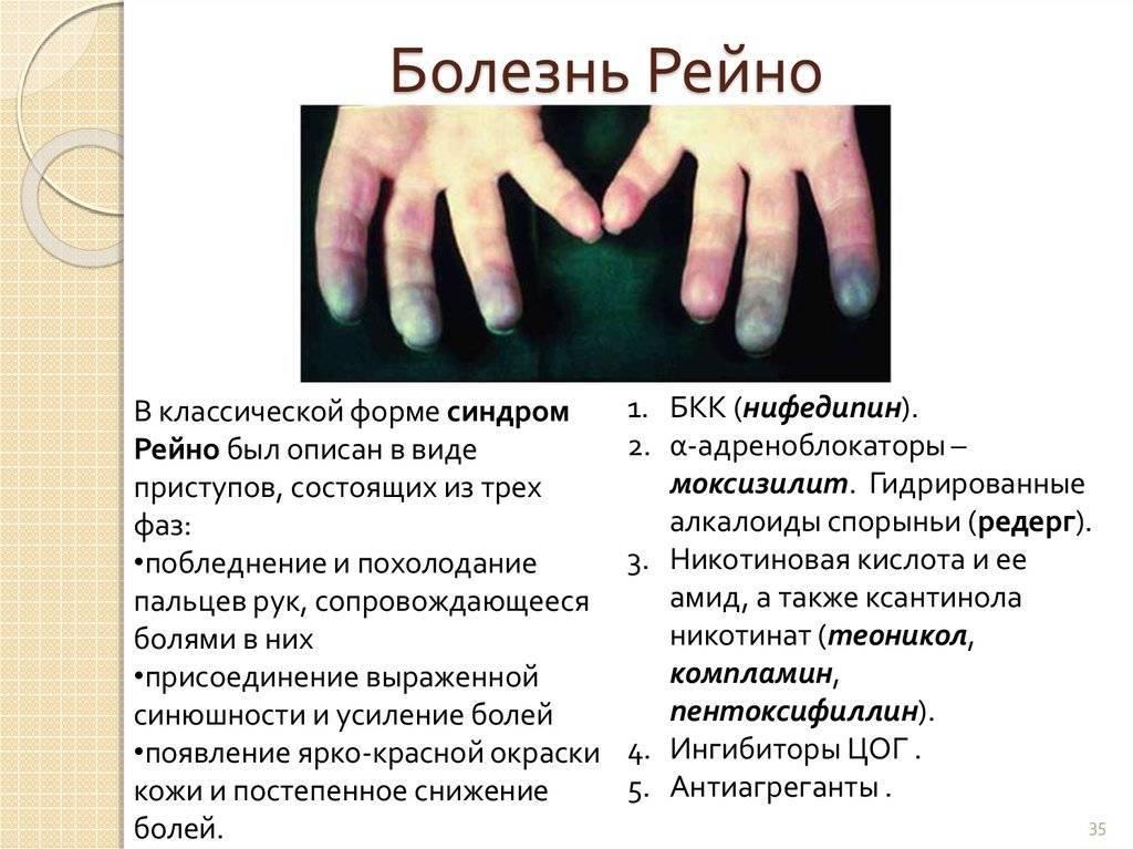 Болезнь рейно: лечение, симптомы, профилактика — онлайн-диагностика