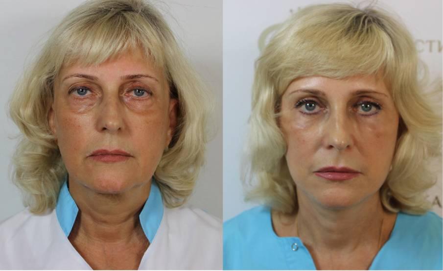 Пластические операции в германии: клиники пластической хирургии