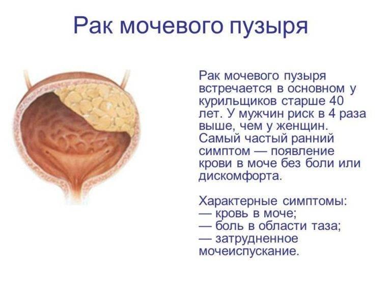 Урофлоуметрия – обследование мочевыделительной системы