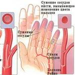 Адреногенитальный синдром