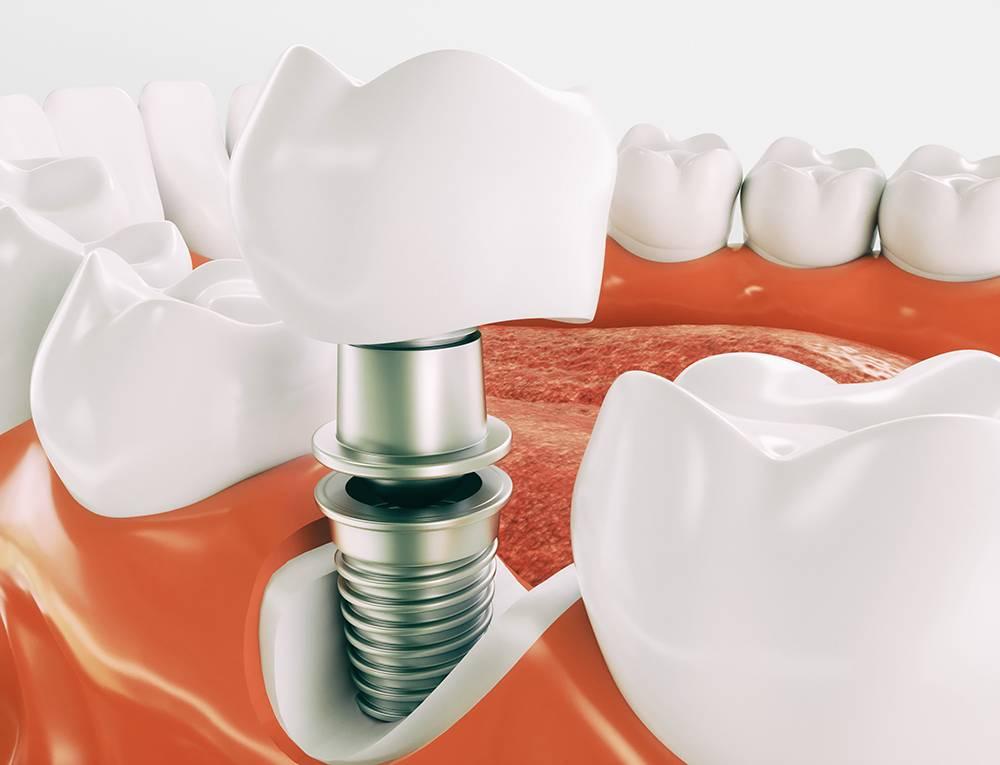 Методы протезирования зубов в израиле