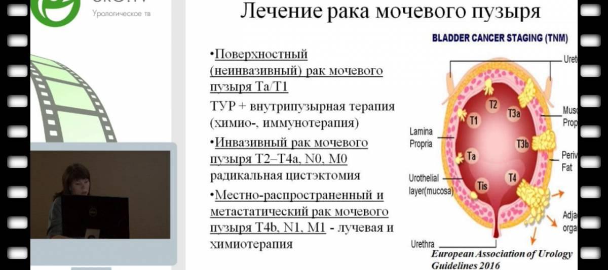 Урофлоуметрия - обследование мочевыделительной системы | университетская клиника