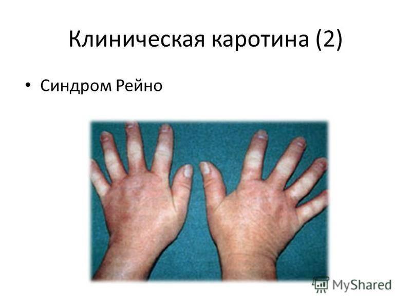 Болезнь рейно