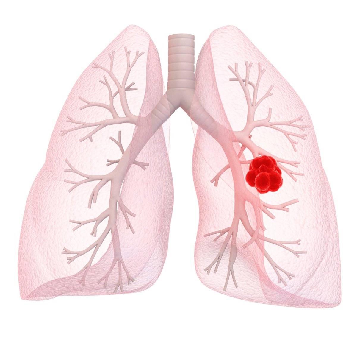 Рак легких: лечение в Германии