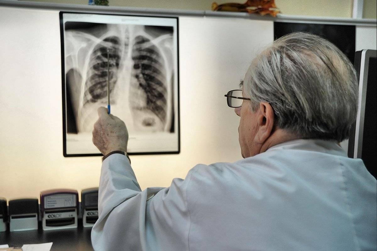 Рак лёгких – лечение в германии