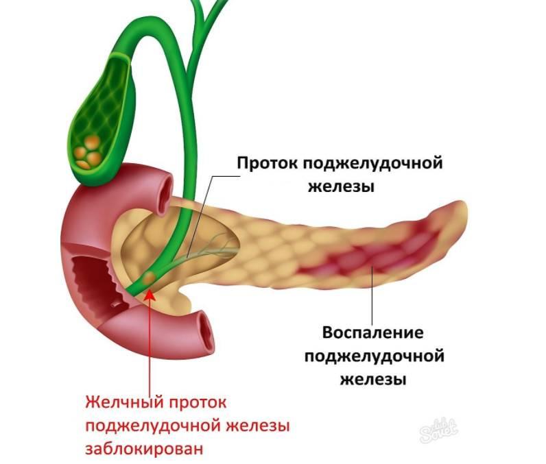 Лечение заболеваний поджелудочной железы в германии