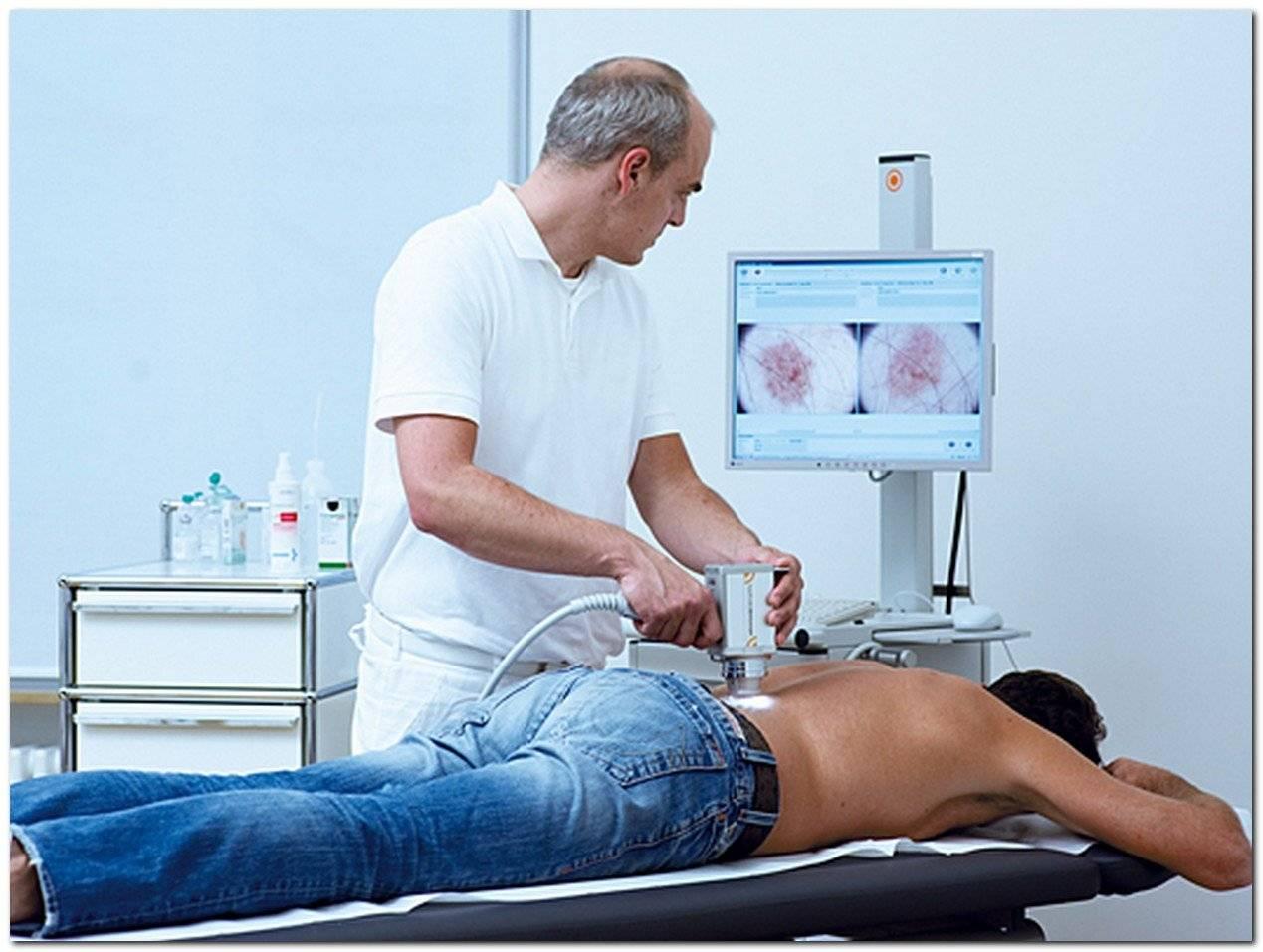 Лечение меланомы в германии только у лучших специалистов : yy medconsulting gmbh