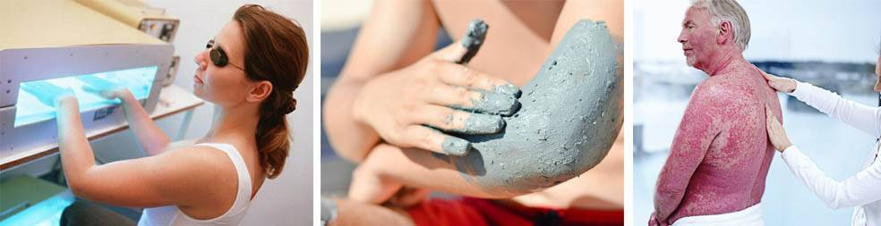 Лечение псориаза на мертвом море эффективными методами