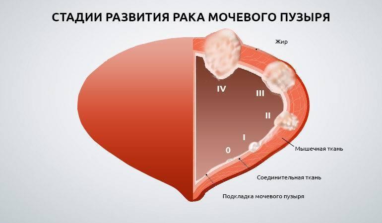 Лечение нарушений мочеиспускания | университетская клиника