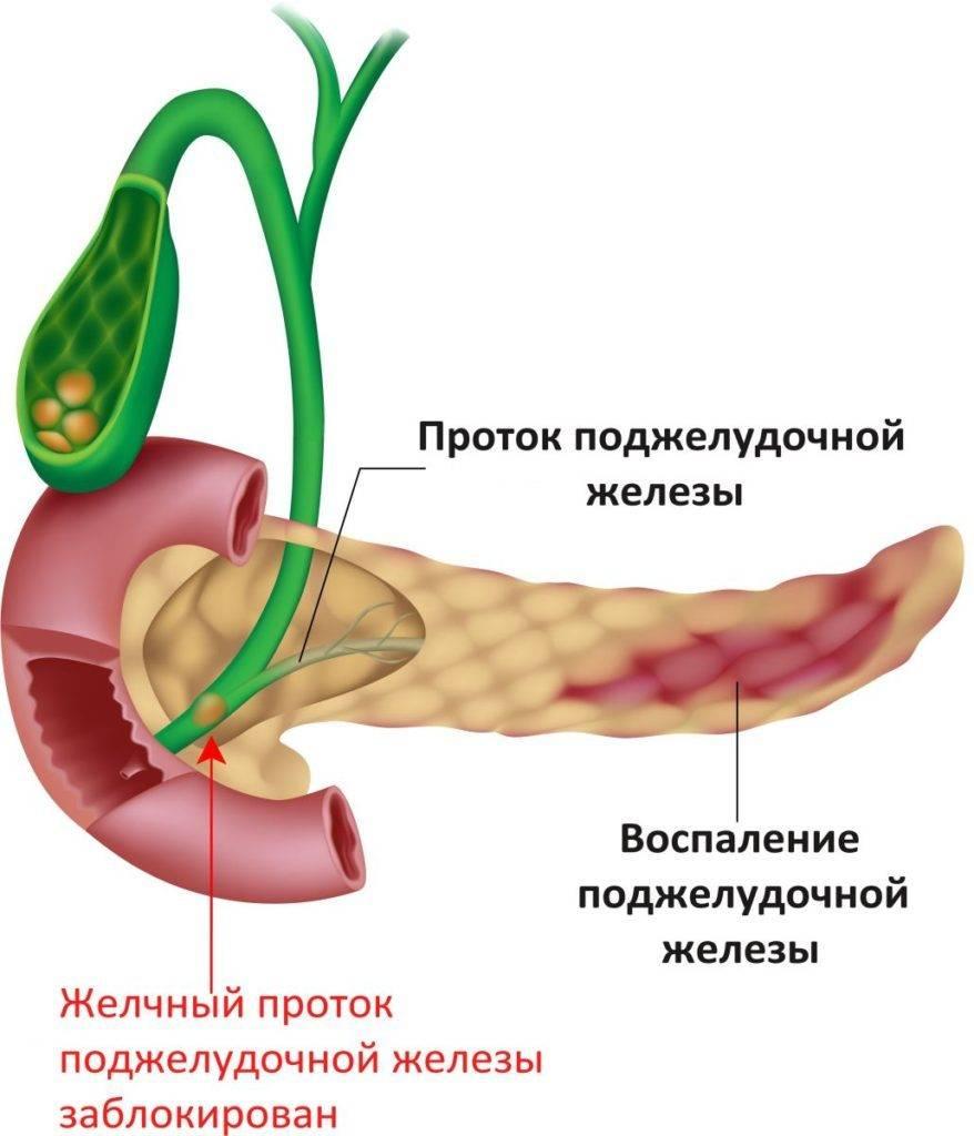 Лечение поджелудочной железы в германии отзывы