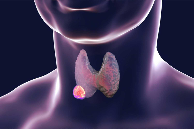 Рак щитовидной железы: диагностика и лечение в Германии