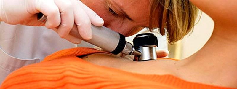 Лечение меланомы в израиле и росиии. - medical helps