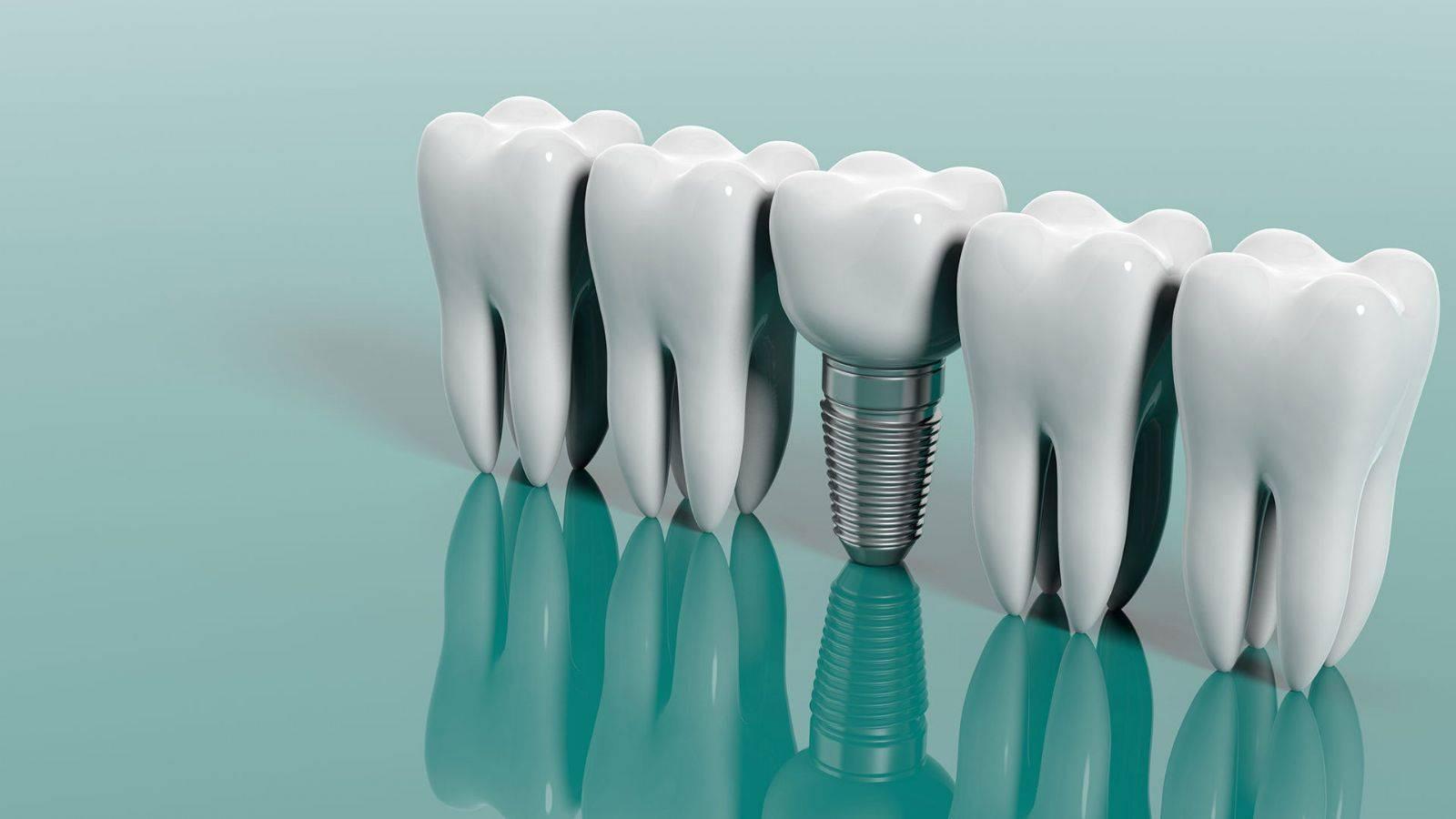 Протезирование зубов в израиле: цены, отзывы, клиники