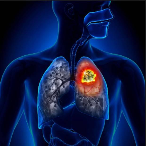 Лечение рака легких в германии, цены | alenmedconsult