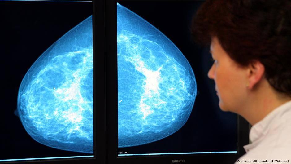 Иммунотерапия при раке молочной железы в москве и краснодаре: сколько стоит иммунотерапия при рмж