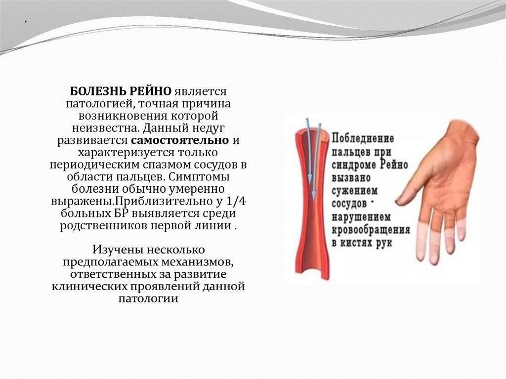 Болезнь или синдром  шегрена: диагностика, симптомы и лечение.