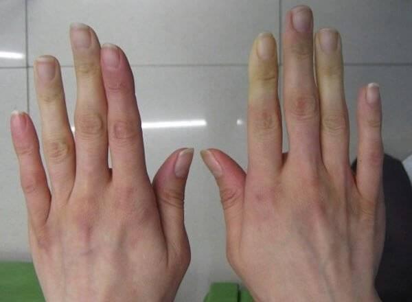 Облитерирующий эндартериит (болезнь бюргера)