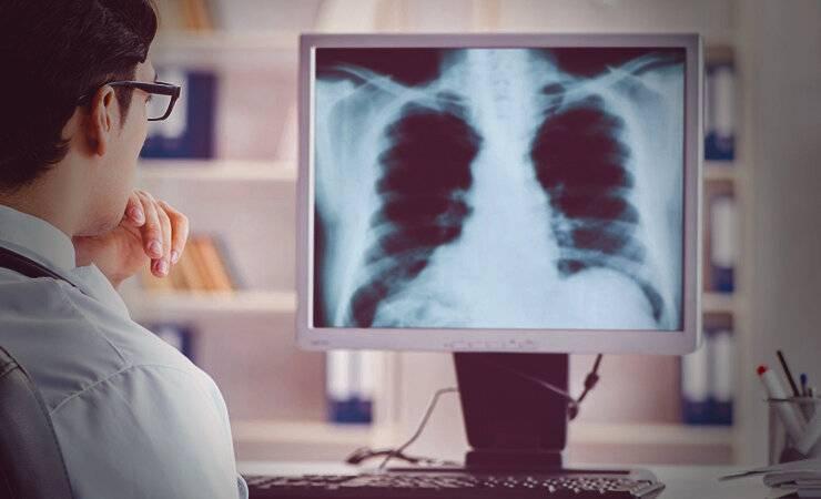 Лечение рака легких в израиле: плюсы и минусы решения