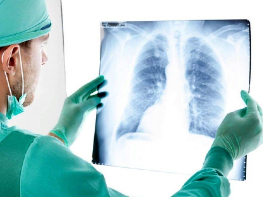 Лечение рака легких в израиле: цены 2021 года | клиника хадасса