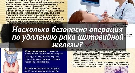 Рак щитовидной железы лечение в германии в лучших клиниках : yy medconsulting gmbh