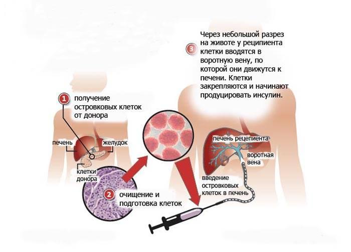 Рак поджелудочной железы: в германии лечение эффективно
